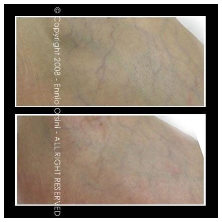 dermopigmentazione capillari
