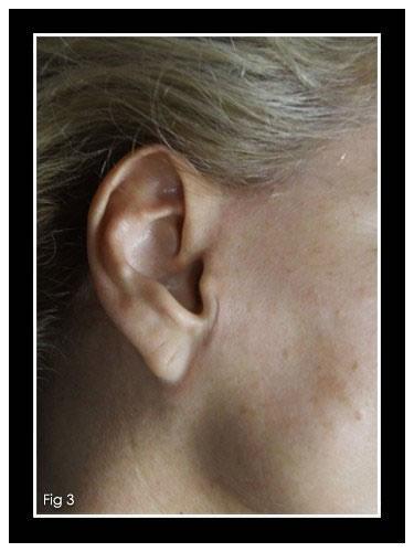 dermopigmentazione cicatrice lifting