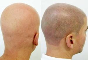 costo tricopigmentazione