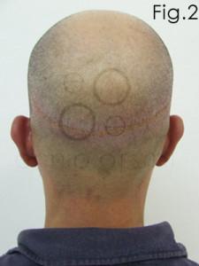 coprire cicatrice autotrapianto 2