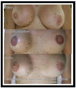 cicatrici mastoplastica tumore